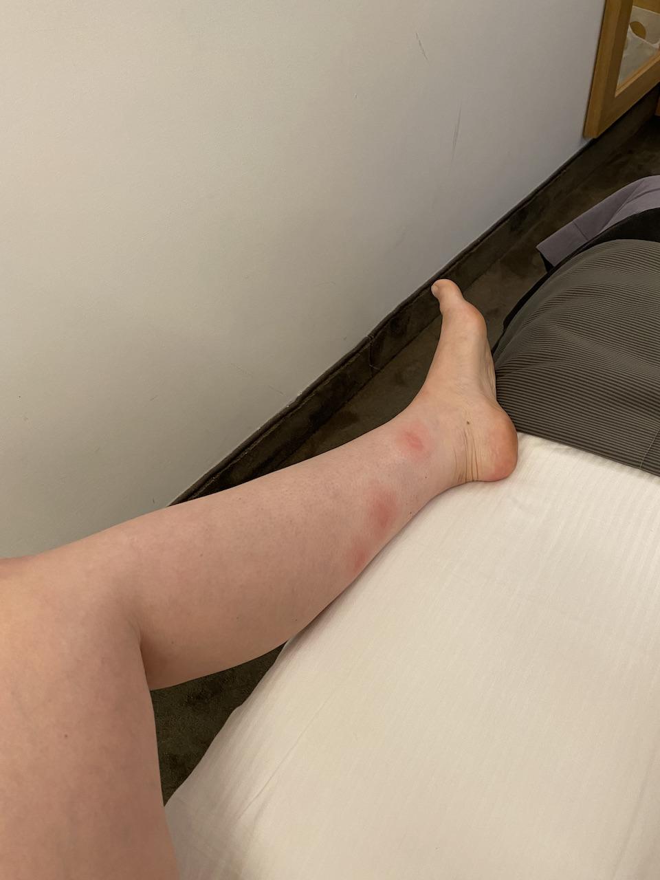 Allergische reactie op muggenbulten - Tips van een ervaringsdeskundige, 1